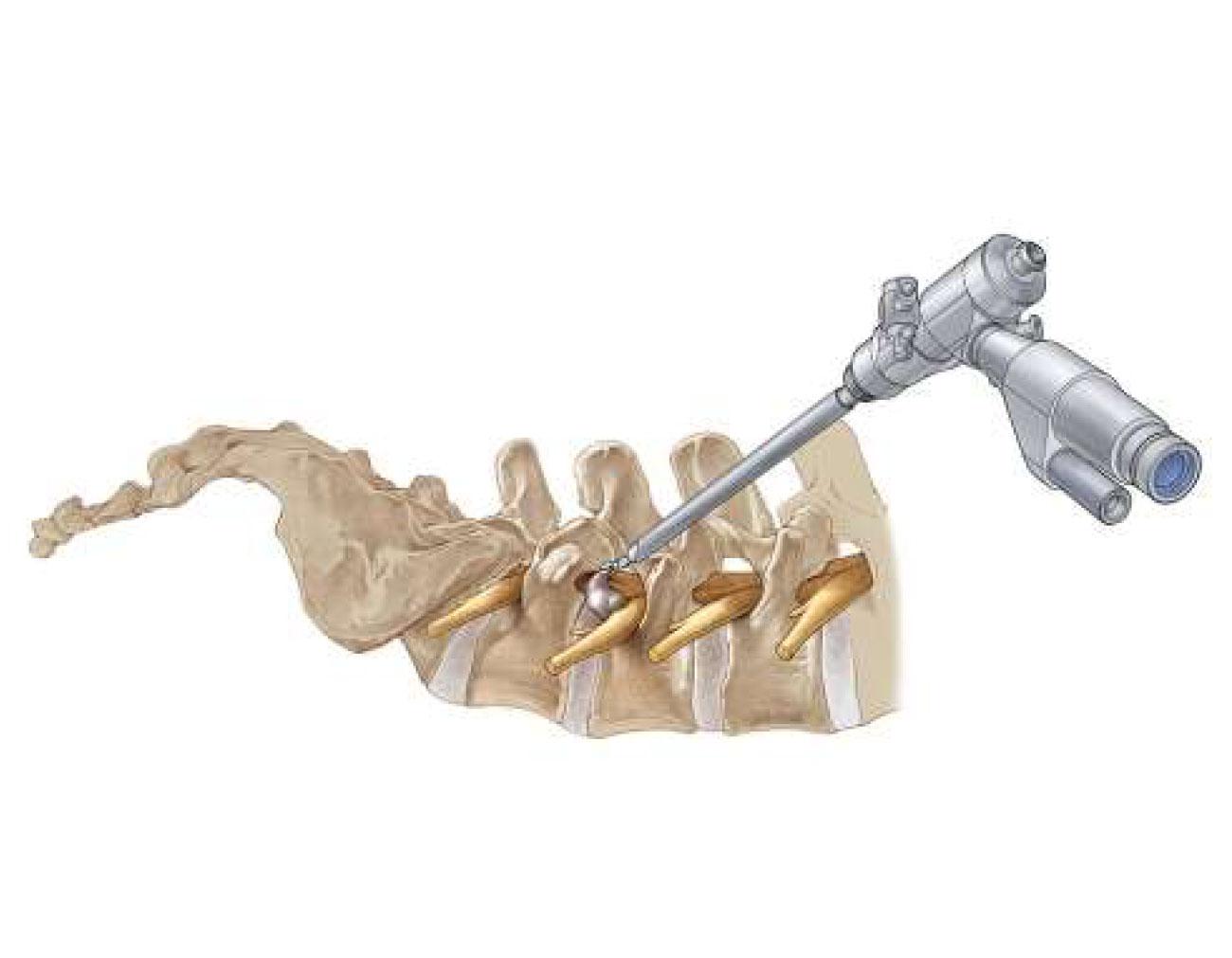 Endoscopic Spine Program