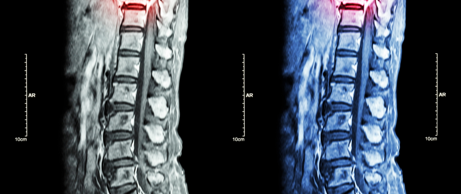Herniated Disc Left Untreated