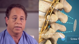 Lumbar Fusion: Ultra-Minimally Invasive