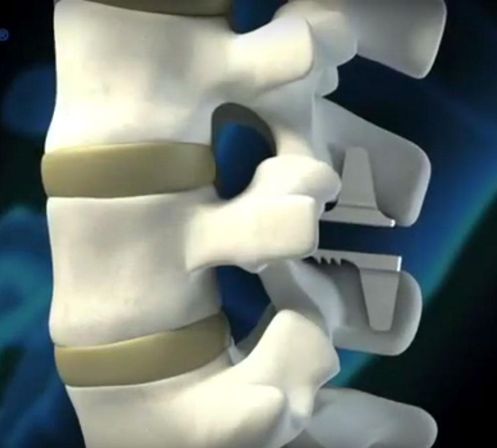 The coflex® Interlaminar Stabilization procedure